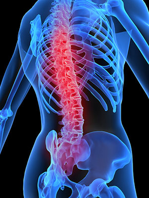 article-7---osteoporosis-copy